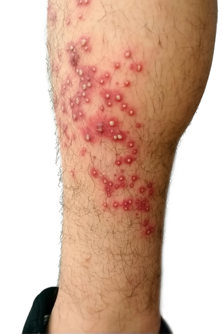 rash remedies itchy