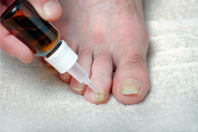 lemongrass oil for toenail fungus