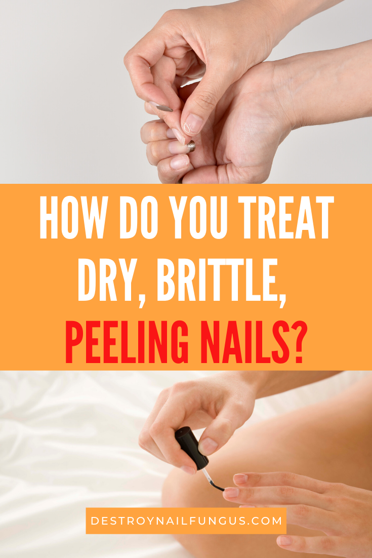 peeling fingernails home remedies