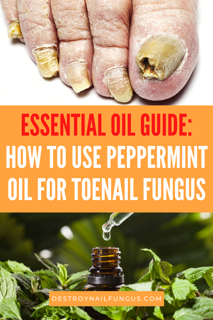 peppermint oil for toenail fungus