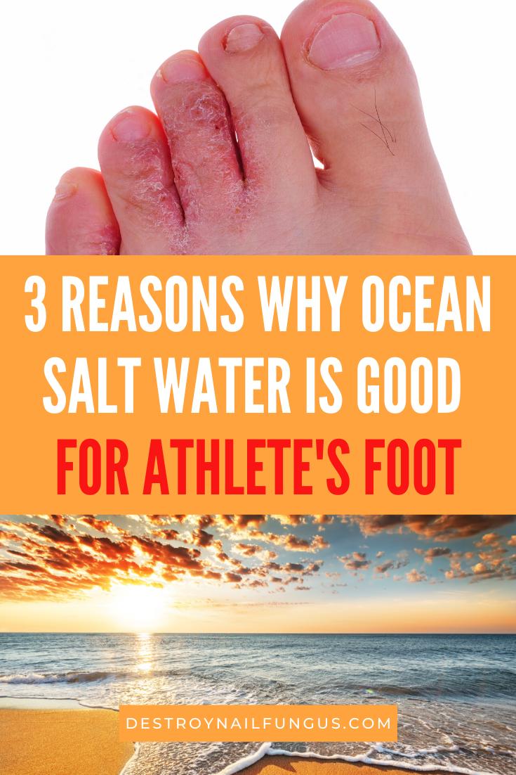 salt water ocean athlete's foot
