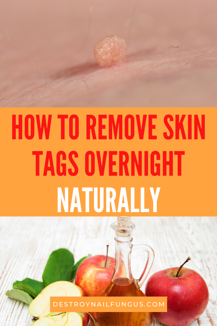 skin tag removal overnight