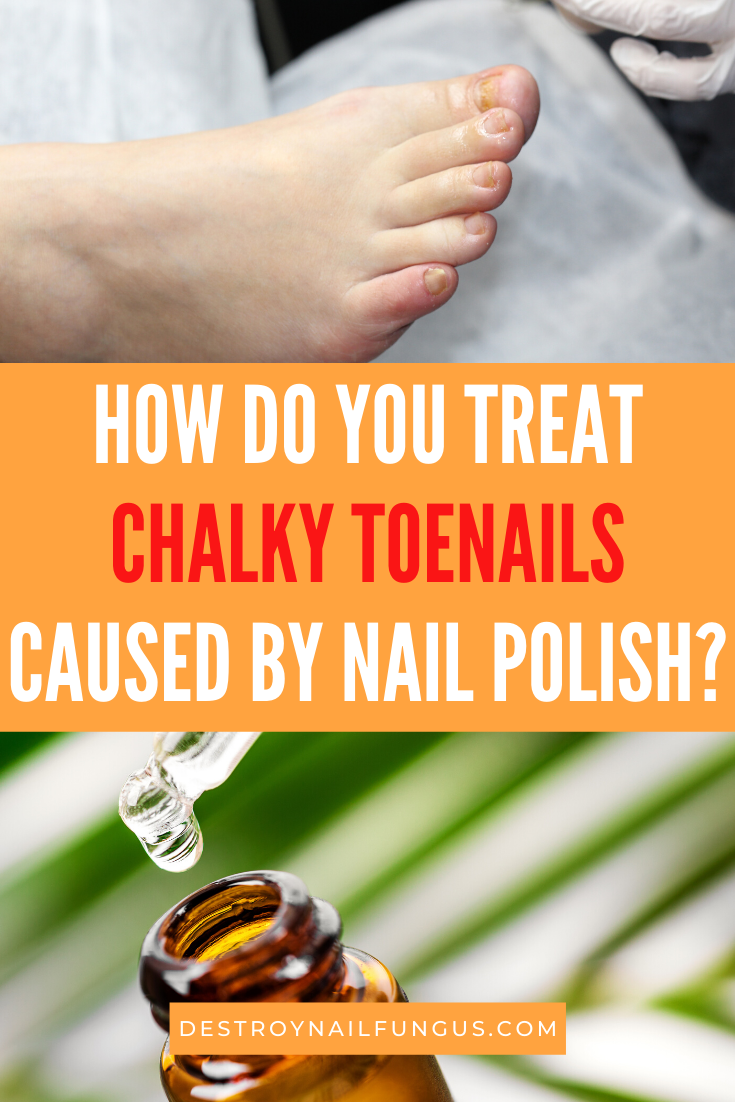 white chalky toenails from nail polish