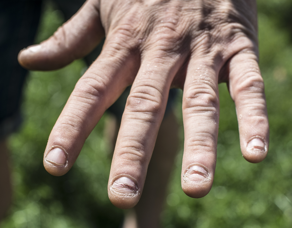 fingernail health signs