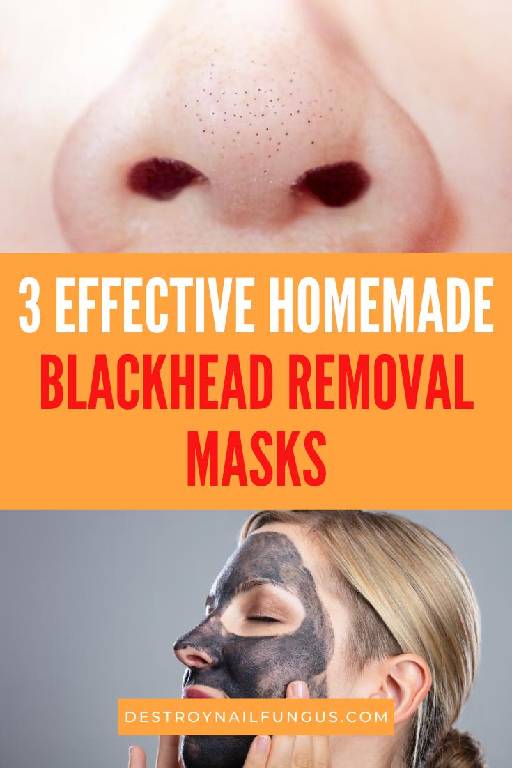 blackhead remover diy