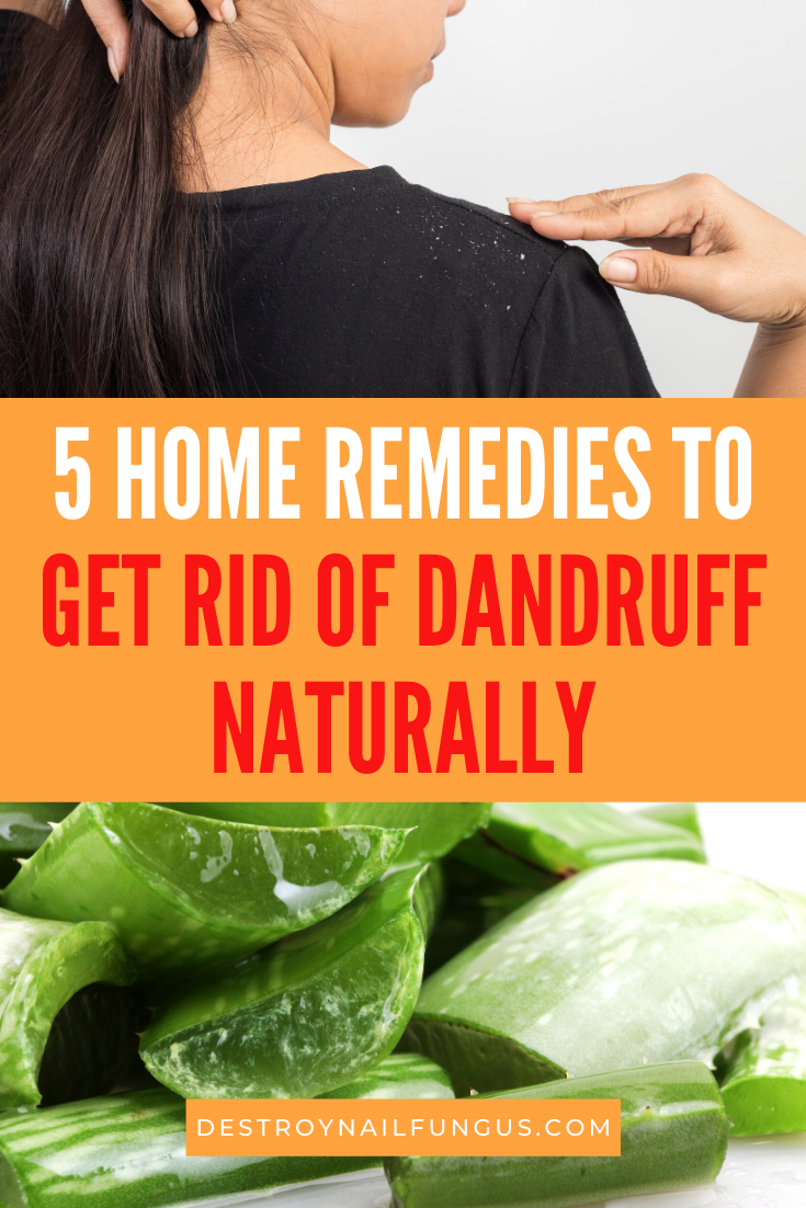 dandruff remedy diy