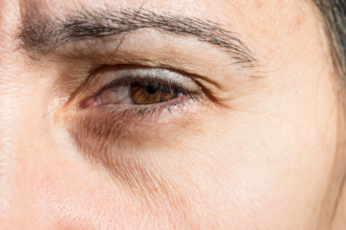 What Causes Dark Circles Under Eyes And How To Get Rid Of Them