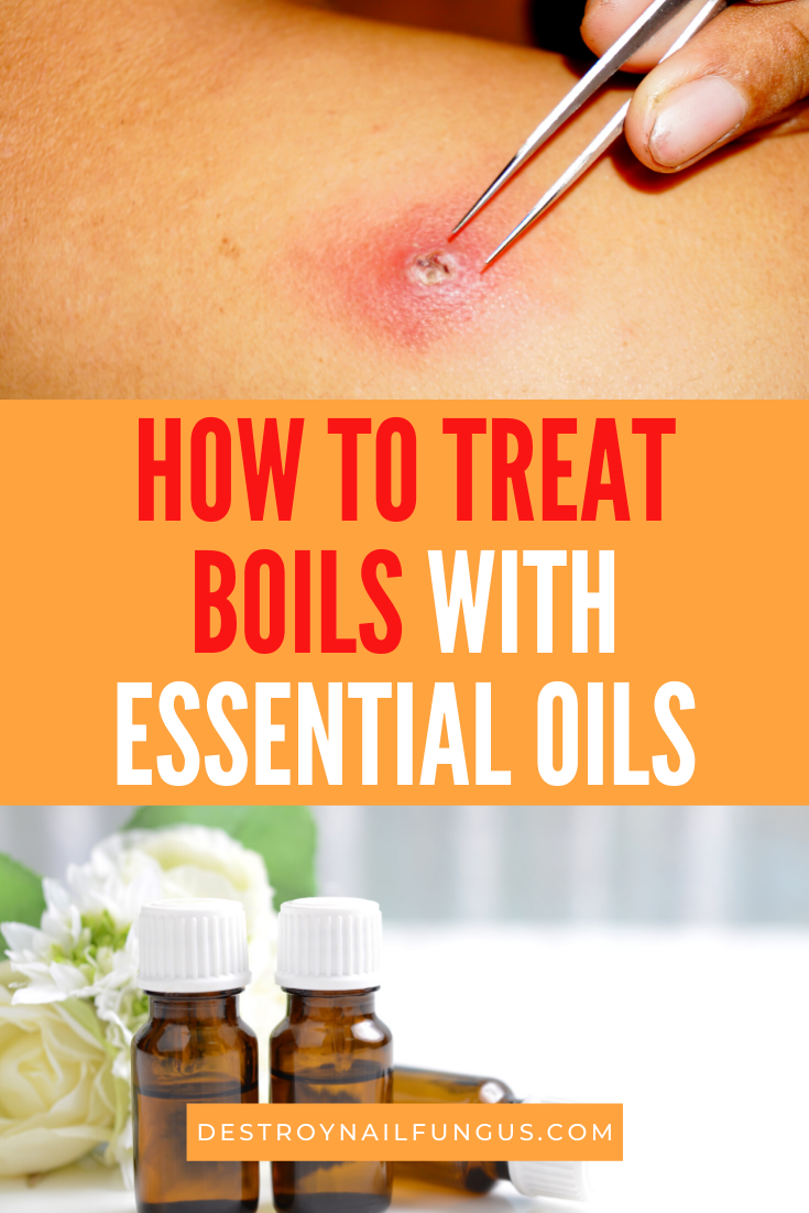 essential oils for boils