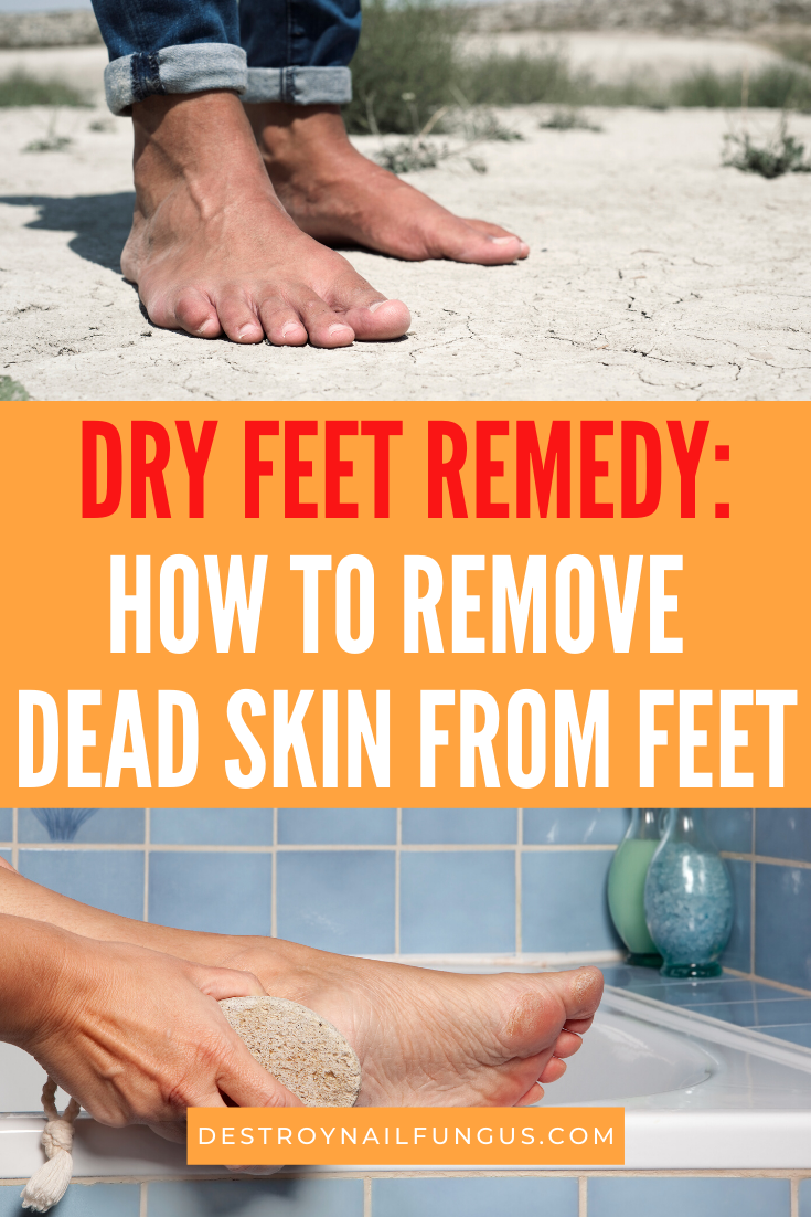 how do you get dead skin off feet